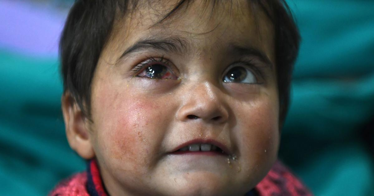 Inequality of suffering: Why images of Kashmir's pellet victims have failed to evoke India's empathy