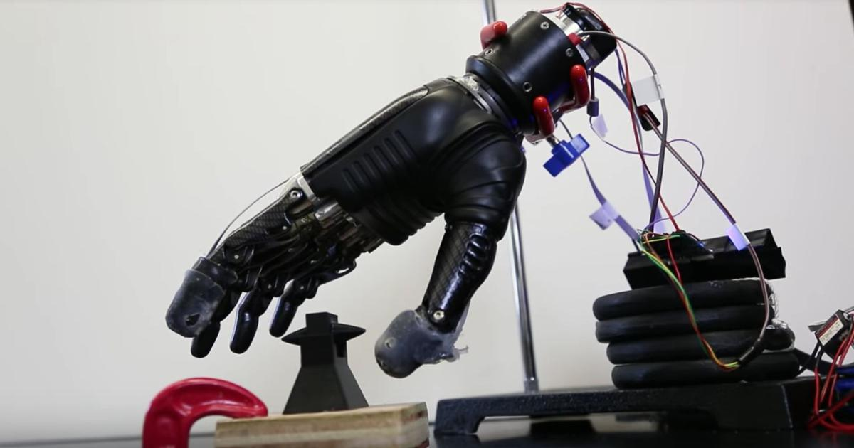 For thousands of Indians searching for smarter, cheaper prosthetic limbs, AI may be the answer