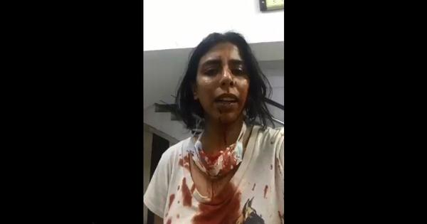 Watch: Bleeding animal care NGO worker alleges assault by locals, police say investigation on