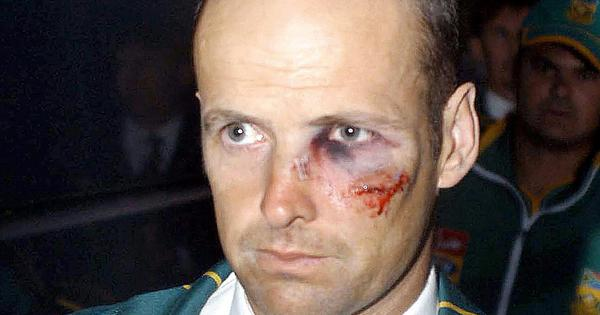 Brave face: When Gary Kirsten batted with a broken nose and swollen eye against Pakistan