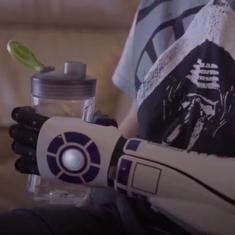 Watch: Eleven year old quadruple amputee receives the world's first Star Wars themed bionic arm