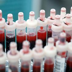 Coming soon: Blood tests to map the scale of India's coronavirus outbreak
